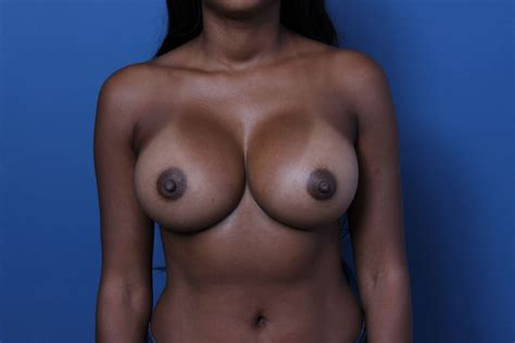 cohesive gel silicone breast implant jpg 5184x3456